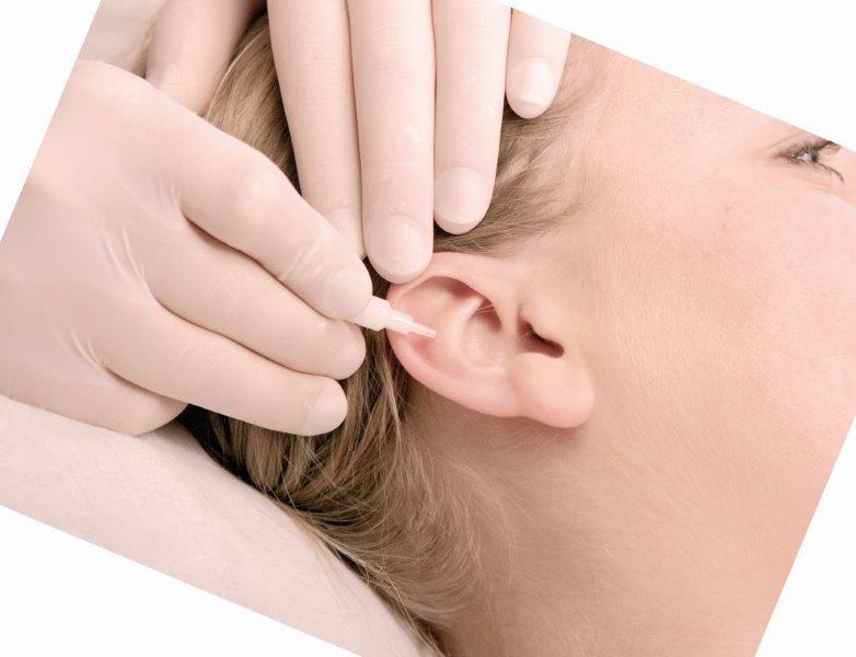 Implantat Ohr Akupunktur Praxis Tombergs Sundern